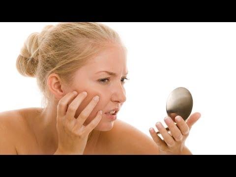 Nasıl Makyaj | Akne Tedavisi İle Sivilce Kapak