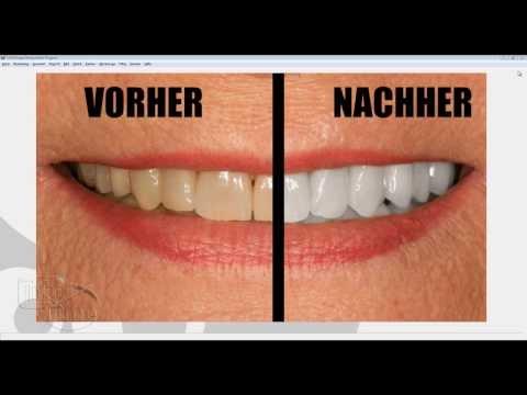 Gimp Öğretici Deutsch: Gelbe Zähne Bleichen/orduya Machen