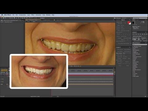 Doğal Diş Beyazlatma İle After Effects Tutorıal