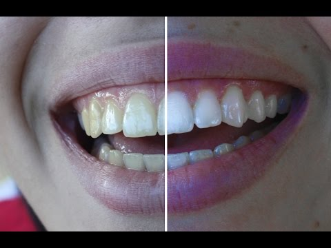 Nasıl Dişleri Beyazlatmak İçin | Photoshop Eğitimi